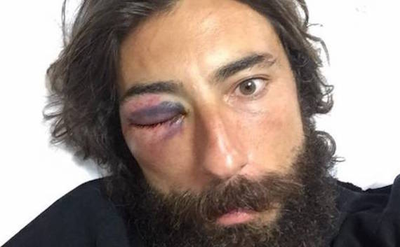"""Vittorio Brumotti, inviato di 'Striscia la notizia': """"Mi hanno aggredito con un tirapugni, rischio la carriera"""""""